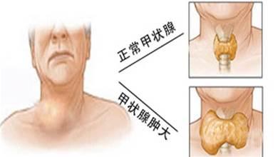 甲狀腺腫大的日常食療與理療方法,收藏就好